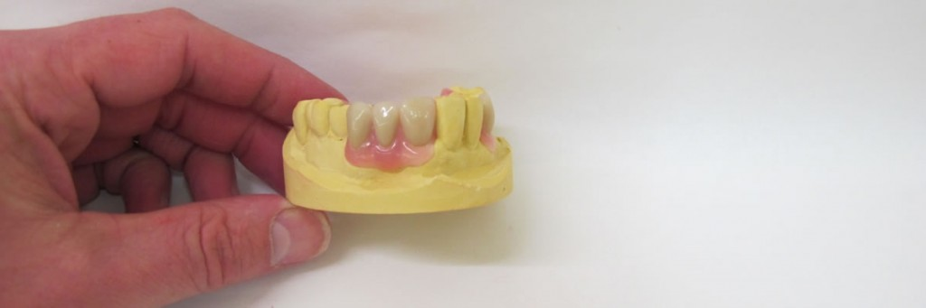 partial-denture-slide