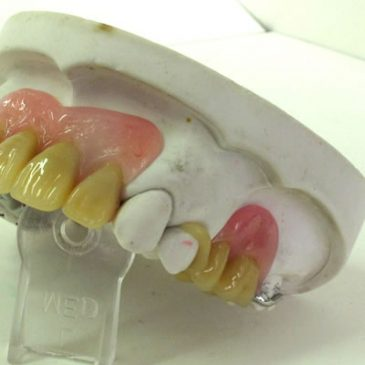 Partial Dentures in Reading