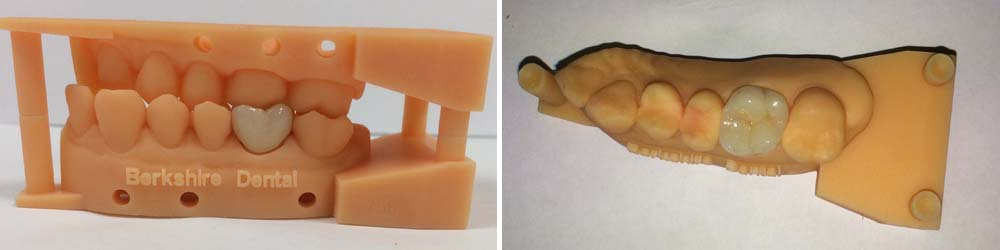 berkshire new dental crown mould technology